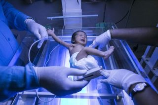 Woman delivers her own baby via c-section